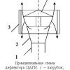 Дефлектор на димохідну трубу